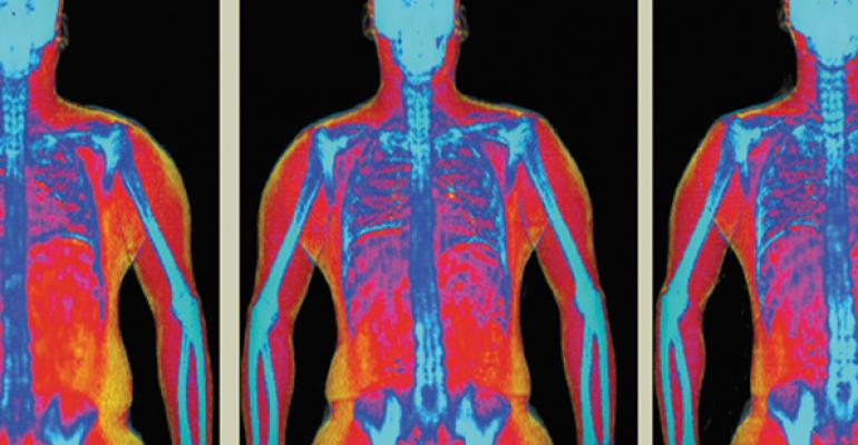 Hologic Advanced Body Composition assessment