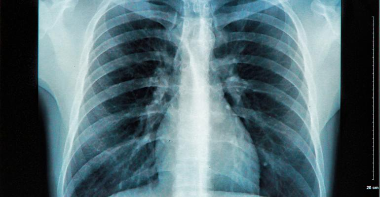 Advising Clients With Pulmonary Hypertension
